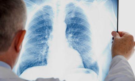 Cáncer de pulmón es cuarta causa de muerte en México