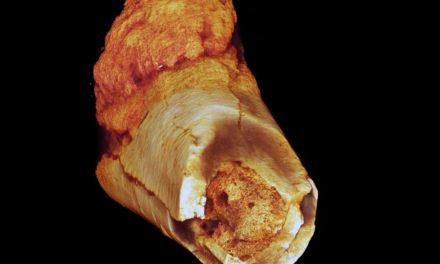 Caso de cáncer humano más antiguo data de hace 1.7 millones de años