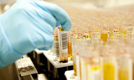 Análisis farmacogenético revela potenciales marcadores predictivos del metabolismo lento de atorvastatina