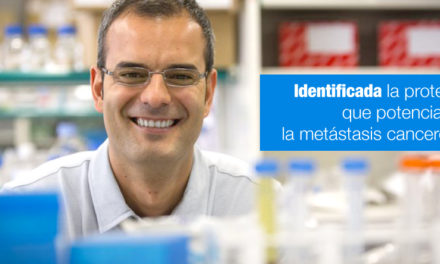 Identificada la proteína que potencializa la metástasis cancerosa