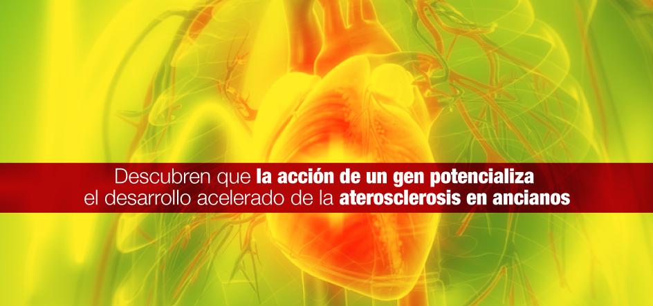 Descubren que la acción de un gen potencializa el desarrollo acelerado de la aterosclerosis en ancianos