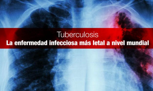 <strong>Tuberculosis,</strong> la enfermedad infecciosa más letal a nivel mundial