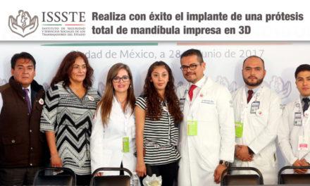 El ISSSTE se posiciona como la segunda institución médica a nivel mundial en realizar con éxito el implante de una prótesis total de mandíbula impresa en 3D